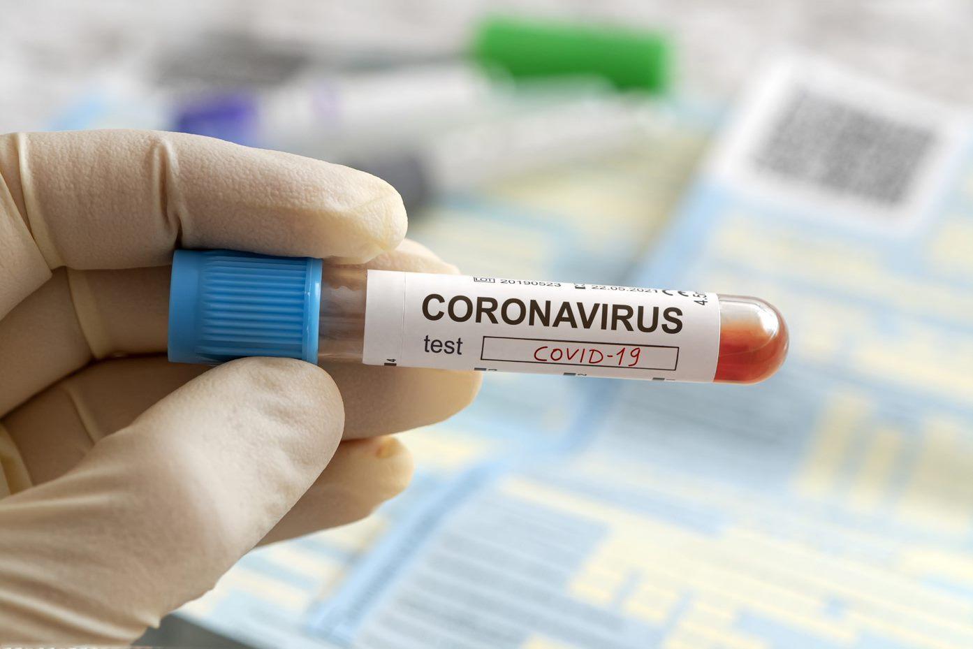 Zero new COVID-19 cases reported in AHS North zone